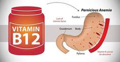 vitamin b12 deficien