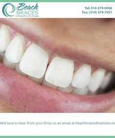 We use the latest technology to achieve gleaming smiles. Facebook Timeline, Orthodontics, Latest Technology