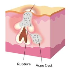 Cystic Acne Home Remedy The best acne treatment theacnecode.com