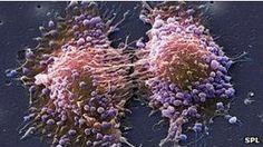 Exitosa técnica de ultrasonido para cáncer de próstata