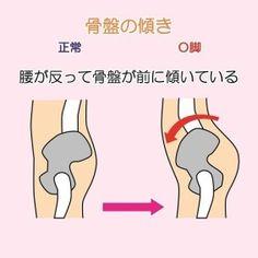 O脚の原因と治す方法!矯正器具では悪化する? 6