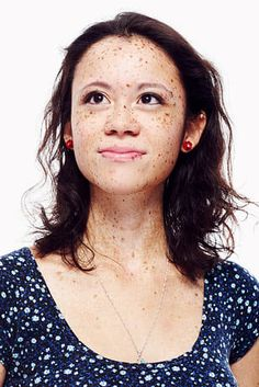 12 People Talk About Their Scars, Birthmarks, Skin Conditions, And More - Style: Beauty - BEaute Birthmark Tattoo, Tattoo Skin, Raw Beauty, Beauty Skin, Vitiligo Model, Pretty People, Beautiful People, Selfies, Beautiful Freckles