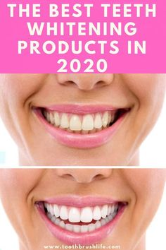 Best Teeth Whitening Products of 2020- by a Dental Hygienist - Toothbrush Life