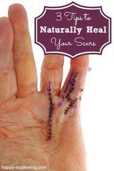 naturally-heal-scars