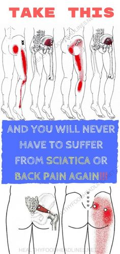 Sciatica is accompanied with pain in the leg and tingling, numbness, or weakness which starts at the bottom of the back, passes through the buttock, and end in the leg. This is a symptom of underly… Sciatica Stretches, Sciatica Pain Relief, Sciatic Pain, Sciatic Nerve, Nerve Pain, Back Pain Relief, Sciatica Symptoms, Hip Stretches, Stretching Exercises