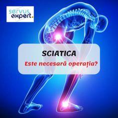Cum apare durerea în fasciita plantară? - Servus Expert Sciatica, Health Advice, Good To Know, Germania, Poster, Austria, Tips, Travel, Human Body