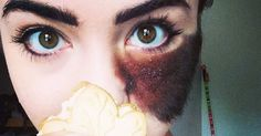 Many People Told Her To Remove That Hairy Birthmark. Instead, This Girl Chose To Celebrate Her Individuality.