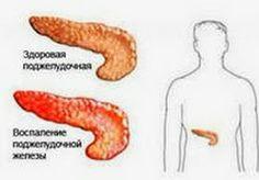 болезнь панкреатит, воспаление поджелудочной железы, диета при воспалении поджелудочной железы, диета при хроническом панкреатите, меню при ...