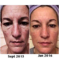 I LOVE 'before and afters'! Reverse And Redefine Regimens and AMP Roller 3x a week! www.yourskinrox.myrandf.com