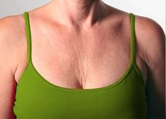 How to eliminate chest wrinkles completely? - Natural Remedies - Eve's Special