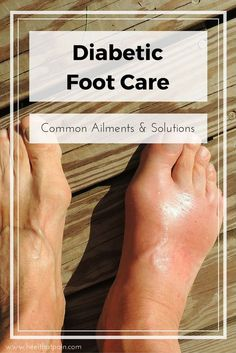 Here's What You Need to Know About Diabetic Foot Pain - Diabetic foot care: People with diabetes are especially prone to foot and heel pain conditions like - Diabetes Tipo 1, Beat Diabetes, Diabetes Meds, Sugar Diabetes, Diabetes Books, Heel Pain, Foot Pain, Poor Circulation, Diabetes Information