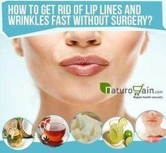 How to get rid of upper lip wrinkles is a question often asked by people who want to reduce smoker's lines and gain soft and smooth skin around mouth. Lip Wrinkles, Prevent Wrinkles, Smokers Lines, Prévenir Les Rides, Cellulite Scrub, How To Line Lips, Sagging Skin, Skin Care Remedies, Natural Wrinkle Remedies