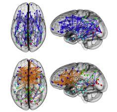 Uno studio su 949 soggetti tra 8 e 22 anni mostra un differente modo di comunicare tra regioni del cervello tra uomini e donne: le differenze diventano visibili dopo i 14 anni / Man and woman show a different pattern of signals between different brain regions.