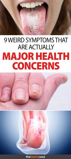 From Craving Ice to Gnarly Nails, Why These Weird Symptoms Are Big Health Concerns Thyroid Problems, Health Problems, Early Dementia, Signs Of Dementia, Understanding Dementia, Social Well Being, Health And Beauty Tips, Health Tips, Health Care