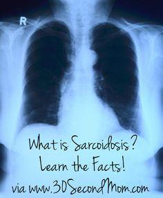 30 Second Mom - Donna John: What is Sarcoidosis? Learn the Facts About This Disease