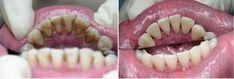 Udělejte toto jednou týdně a vaše zuby budou bílé jako perly, dokáže zastavit každý stav onemocnění v ústech a zápach z úst