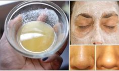 This Is The Best Face Mask. Fairness, Acne, Blackheads, Wrinkles – All In One Face Mask - Best Health Page Baking Soda Mask, Baking Soda For Acne, Baking Soda And Lemon, Baking Soda Uses, Home Remedies, Natural Remedies, Health Remedies, Best Face Mask, Peeling