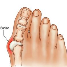 For tips on how you can prevent bunions: http://www.thefootpros.com/library/bunion-prevention---dr--marco-vargas-offer-tips-on-avoiding-bunions.cfm