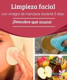 3 Unusual Treatments To Get Rid Of Acne Scars – Away With Acne Apple Cider Vinegar Cellulite, Apple Cider Vinegar Facial, Oily Skin Care, Skin Care Tips, Crema Facial Natural, Natural Skin, Beauty Secrets, Beauty Hacks, Beauty Tips