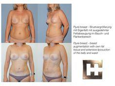 Vor und nach Liposuction mit Eigenfett für die Brust Liposuction, Swimwear, Fashion, Wels, Linz, Guys, La Mode, Fashion Illustrations, Fashion Models