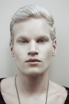 Royalty-free Image: Portrait of albino man. More sites should put watermarks across their photos. This way people can save them without worrying about losing the source. Black Dagger Brotherhood, Albino Men, Modelo Albino, Beautiful Men, Beautiful People, Light Eyes, People Of The World, Interesting Faces, Male Face
