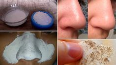How to Remove Blackheads Naturally http://homeremediestv.com/how-to-remove-blackheads-naturally/ #HealthCare #HomeRemedies #HealthTips #Remedies #NatureCures #Health #NaturalRemedies  How to Remove Blackheads Naturally Blackheads are small black skin projections often found on the face especially on the nose and sometimes on the back.  Related Post  7 Surprising Uses for Aspirin One thing that is found in almost every single first-aid kit is aspirin. Aspirin is a common pain reliever…