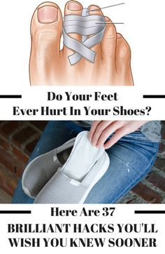 These brilliant shoe hacks will make your shoes more comfortable! From helping to prevent blisters to making it more bearable to wear high heels, you'll wish you knew these hacks sooner. If you need help stretching, cleaning, and/or getting rid of that shoe 'smell - look no further! #lifehacks #diy #shoes #shoes #shoelover #health