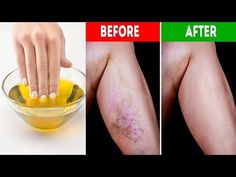 Get Rid of Varicose Veins Forever With The Use of One Simple Ingredient! Get Rid of Varicose Veins Forever With The Use of One Simple Ingredient! Varicose Vein Removal, Varicose Vein Remedy, Varicose Veins, Health Remedies, Home Remedies, Natural Remedies, Natural Treatments, Clogged Arteries, Cure Diabetes Naturally