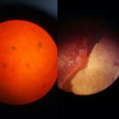 Mamão /microscópio/ lupa  Carica papaya