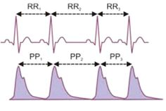 Heart Rate Variability training uses patterned breathing and imagery during HRV monitoring to help re-train parasympathetic/sympathetic balance lowering blood pressure, relieving stress and improving digestion. We specifically use the HeartMath system which monitors HRV during breath and imagery training...