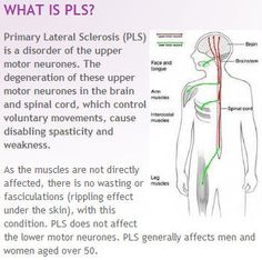 1000 images about primary lateral sclerosis spastic for What is motor neurone disease symptoms
