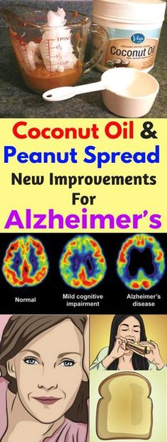 Coconut Oil & Peanut Spread: New Improvements For Alzheimer's - Howsite