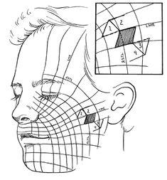 Lacerations: Merck Manual Professional lines of langerhans
