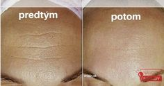 vrasky Beauty Tips For Face, Diy Beauty, Beauty Skin, Health And Beauty, Beauty Hacks, Homemade Beauty Tips, Body Mask, Medicinal Herbs, Skin Tips