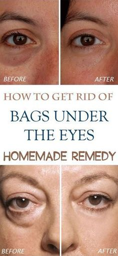 Homemade remedies for bags under eyes