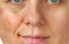 SAI PRA LÁ RUGAS. As temidas RUGAS são linhas e depressões que se formam na pele com o envelhecimento. Atingem principalmente a região facial, o pescoço e as mãos. Devido ao avanço da idade, a pele fica mais fina perdendo a suavidade e a elasticidade. No rosto os sinais acontecem mais no canto dos olhos e da boca, podendo ser vincos temporários ou definitivos. Veja o posto completo pelo Blog Vaidosas de Batom