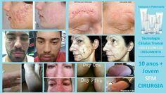 Estos son algunos de los Resultados de los productos Luminesce. Conoces a alguien con acné, cicatrices, manchas, arrugas? Infórmate en http://anabelycarlos.jeunesseglobal.com #anabelycarlos #jeunesse #luminesce #serum #siemprejovenes