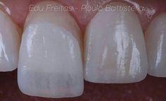 #ESTETICA  Cortesía @edufreitas10 Un pequeño detalle que puede hacer gran diferencia. #dentistry #lovers #odontolovers #dentalovers #odontologia #odontologo #dentista #aesthetics #estetica #porcelain #porcelana #dentista #dientes #perfectos #perfect #smile #protesis #cosmetica #dentistry #innovation #combinadas #restaurar #bite #tooth #teeth #white #patient #happy #dente by dentalovers Our General Dentistry Page: http://www.myimagedental.com/services/general-dentistry/ Google My Business…