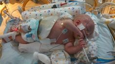 Tips for enduring the NICU experience.  #RareDiseaseDay #NECsociety #NICU