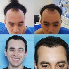 •Before and After•  1083 grafts and 3400 hairs were used to transform this hair line▪  We love to make our clients happy😀  #hair  #hairloss #fue #follicularunitextraction #recedinghairline #hairtransplant #beforeandafter #results #newhair #hairsurgery #hairrestoration #confidence #harleystreet #hairlosstreatment #happyclient #transformation