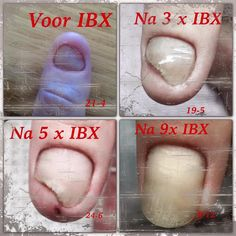 Before IBX, after 9 times IBX the customer has a beautiful nail (photo by Nicolet Henken-van Veluw)