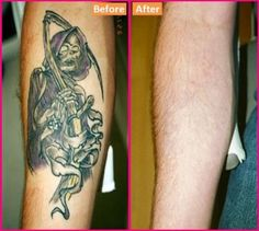 Laser rays are working best for the reduction of tattoos from your body. They move deep inside your body and remove the pigments from their roots. So that you can get an opportunity to make another tattoo which you want. Visit us on Laser tattoo removal Ink Removal, Natural Tattoo Removal, Laser Removal, Laser Tattoo, Diy Tattoo, How To Get Rid, How To Remove, Tattoo Cream, Laser Clinics