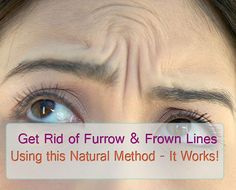 Get Rid of Furrow & Frown Forehead Wrinkle Lines with this Natural Method – IT WORKS! | Beauty and MakeUp Tips