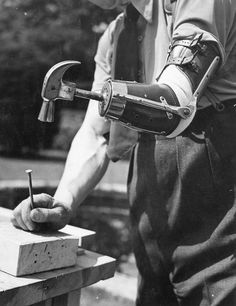 historical prosthetic limb. Who ever this guy is, I would like to shake his hand. Er...ah, no pun intended.