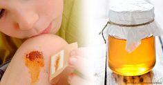 Ciertos tipos de miel, como la de Manuka, han demostrado ser más efectivas que los antibióticos para el tratamiento de infecciones de la piel graves. http://articulos.mercola.com/sitios/articulos/archivo/2015/07/19/la-miel-natural-acelera-la-cicatrizacion-de-heridas.aspx