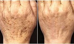 Age usually goes hand in hand with a number of health problems, but also some cosmetic ones, including age spots. They usually appear