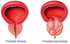 ¿puedes vivir una vida normal con una próstata agrandada letra