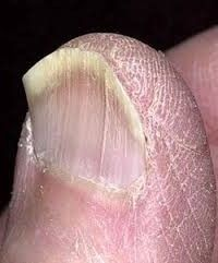 Did you know that your fingernails can provide clues to your overall health? Normal, healthy nails should appear smooth and have consistent coloring, but as you age, you may develop vertical ridges, or your nails may be a bit more brittle. Nail Health Signs, Bad Nails, Healthy Nails, Warts, Nail Care, Danger, Nutrition, Science, Yellow Nails