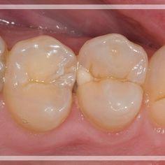 Class 2 different approach  #ivocalr #3m #dentsply #estheticdentistry #dentistry #odontology #zahnart #dentalassistant #dentalcare #dentalschool #prosthodontic #dentist #veneers #smiledesign #dsd #dentalstudentthread #rubberdamology #dentistrymyworld #gentledent #biomimetic #dentistry_forum #odontologia #odontologo