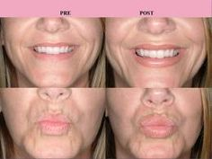 As we age, a common complaint is thinning of the lips and decrease of red lip show. Now there is a permanent solution. Surgisil© lip implants are soft, pliable and made of solid silastic, so they won't disolve away with time.